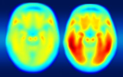 Researchers' Apply Innovative Technique to Investigate Alzheimer's