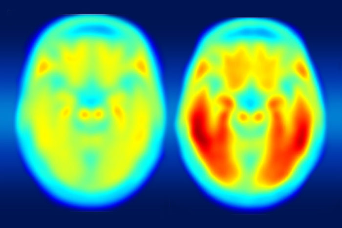 Two brains for ALS Study